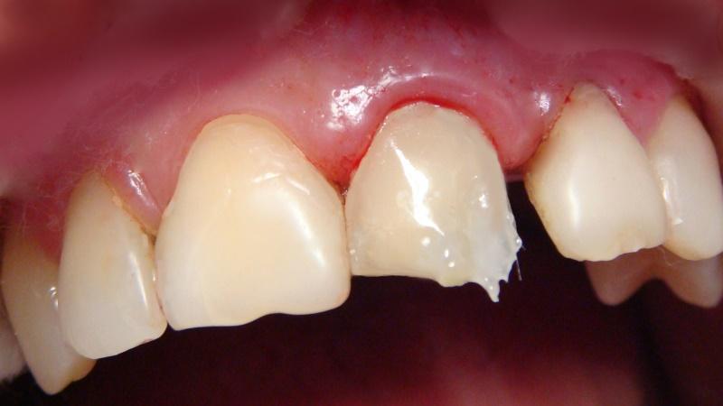 фото пломба на передних зубах