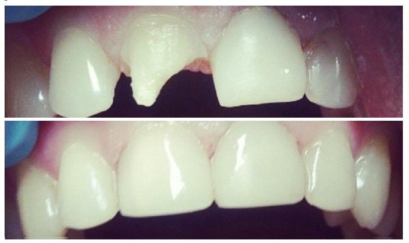пломбы на передних зубах фото