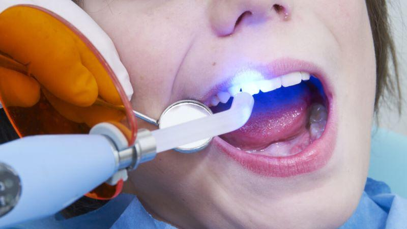 потемнела пломба на переднем зубе