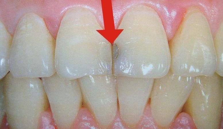пломбы на передних зубах видео