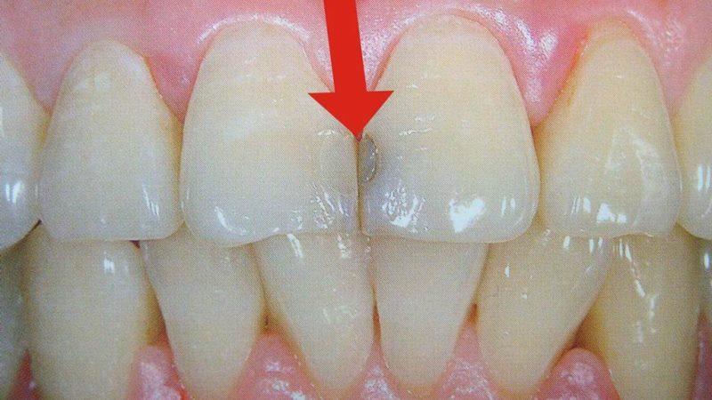 Пломбы на передних зубах с учетом современных тенденций и критериев эстетики