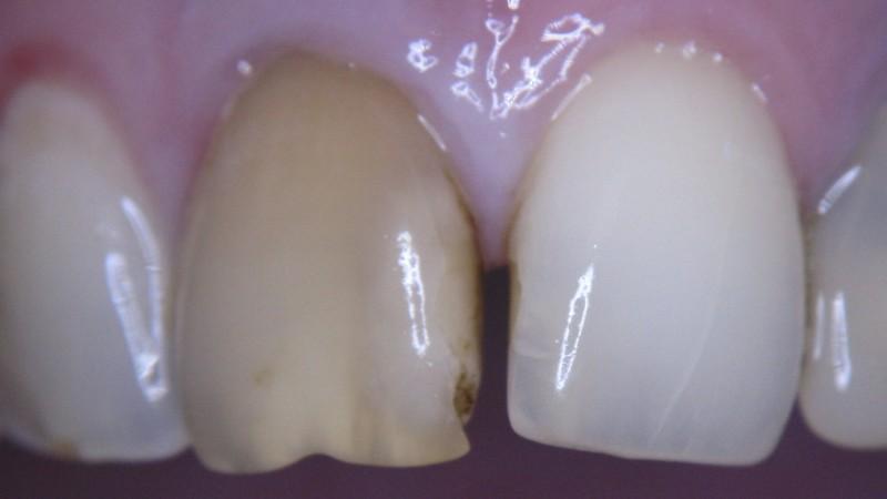 потемнел зуб после удаления нерва что делать