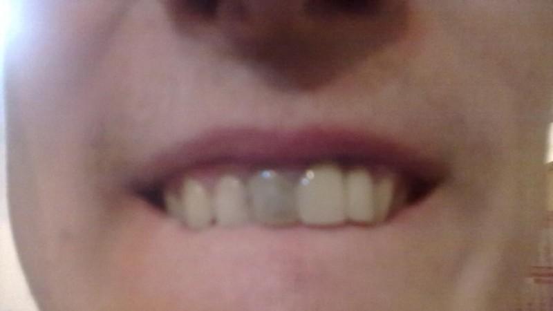 передний зуб потемнел что делать