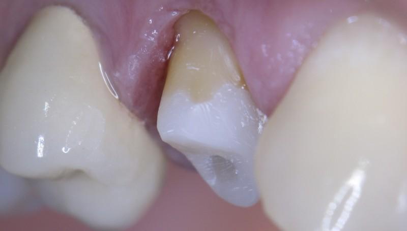 под пломбой потемнел зуб