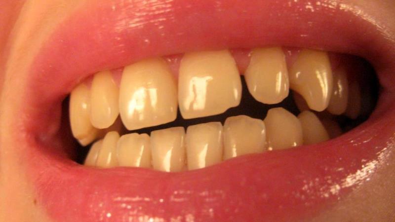 почему желтеют зубы и как их отбелить