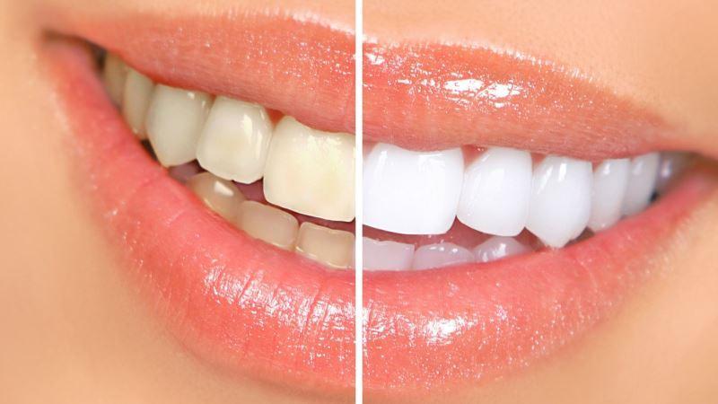 почему желтеют зубы у взрослых