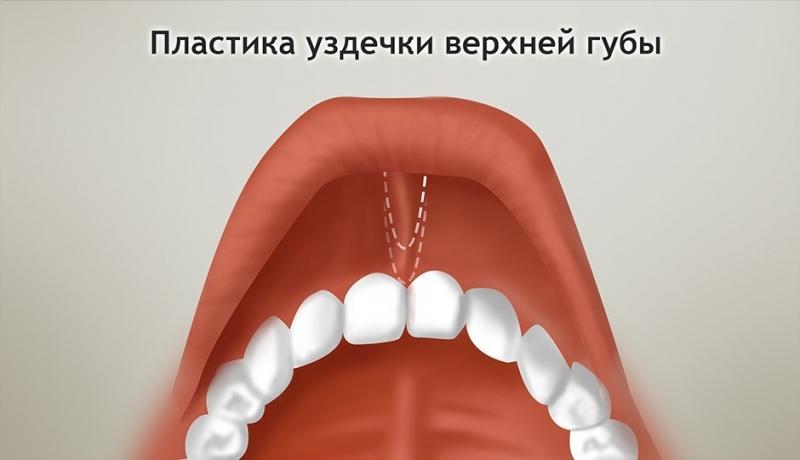 Френулопластика один из методов наряду с френулотомией и френоктомией