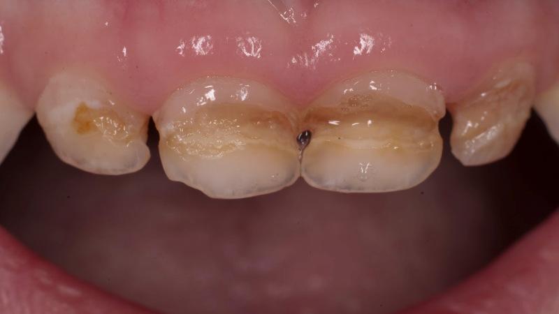 силиконовая щетка для зубов