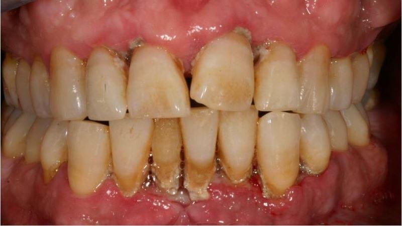 снятие зубных отложений ультразвуком