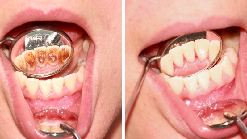 До и после удаления зубного камня