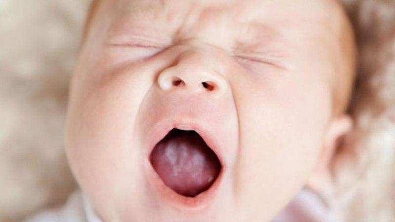 сыпь на языке у ребенка фото