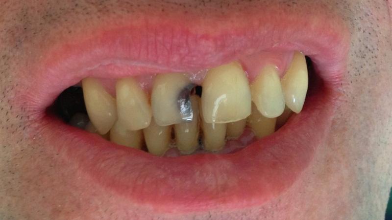 точки для снятия зубной боли