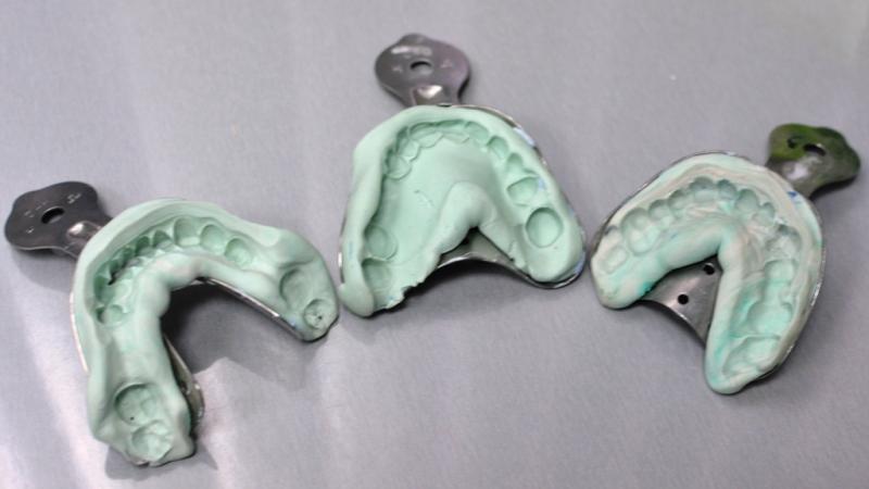 зубные коронки из металла с напылением