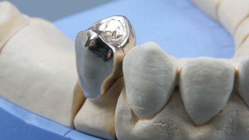 Цельнолитая коронка на задний зуб