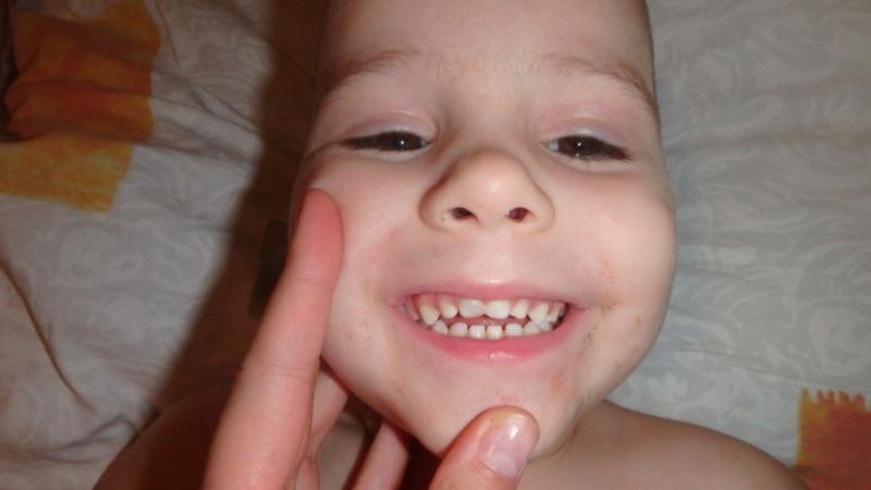 у ребенка потемнел молочный зуб