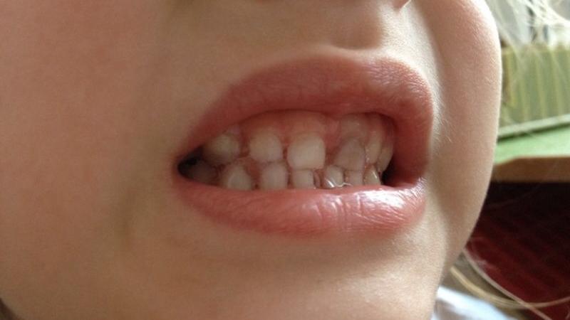 потемнел зуб молочный после удара