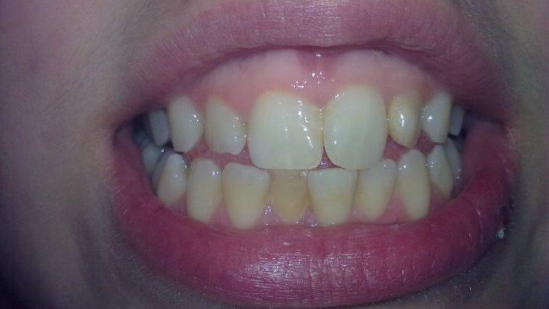 у ребенка потемнел зуб после удара видео