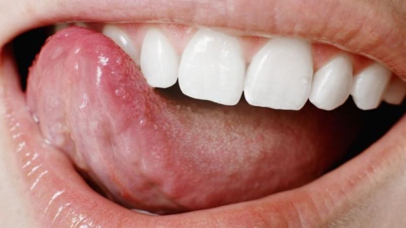 воспаление корня языка фото