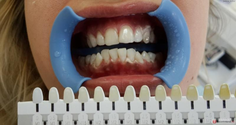отбеливание зубов вредно