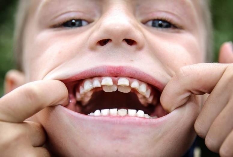 второй ряд зубов у детей