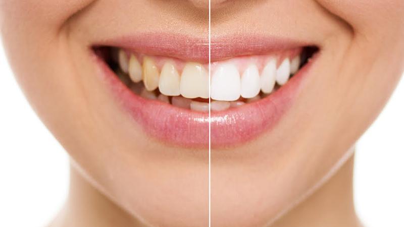 Отзывы о зубной пасте SPLAT Отбеливание плюс