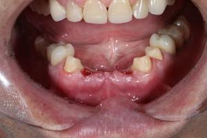 Зубные имплантаты Астра Тек и высокая квалификация наших врачей – ваша идеальная улыбка на долгие годы