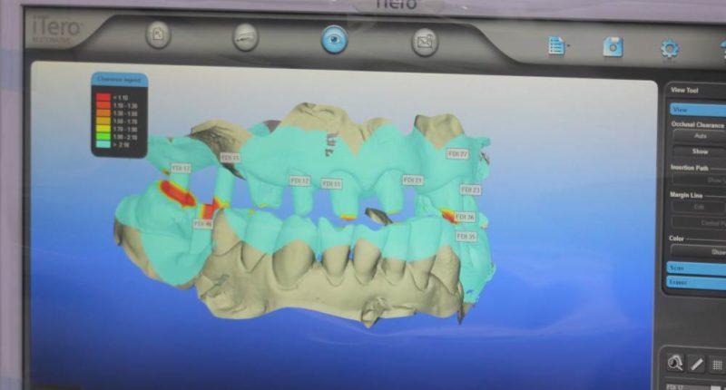Какие существуют виды имплантатов Nobel Biocare и в чем их преимущества