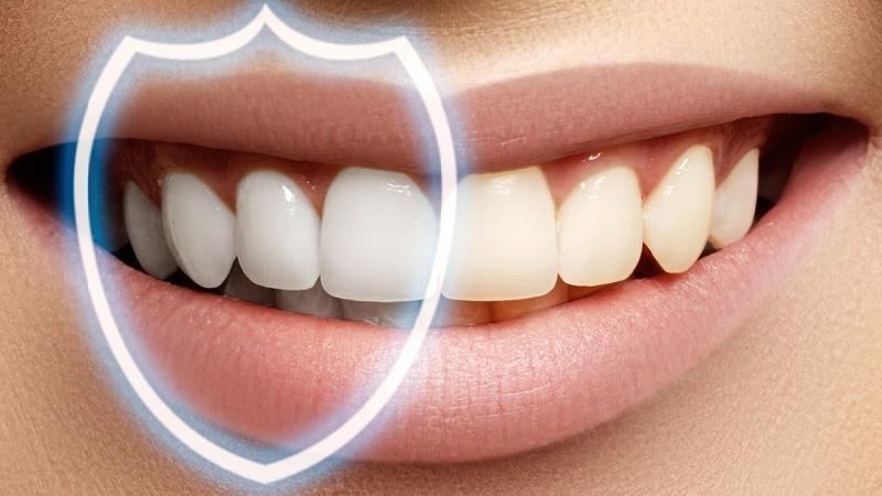 Зачем нужна полировка зубов