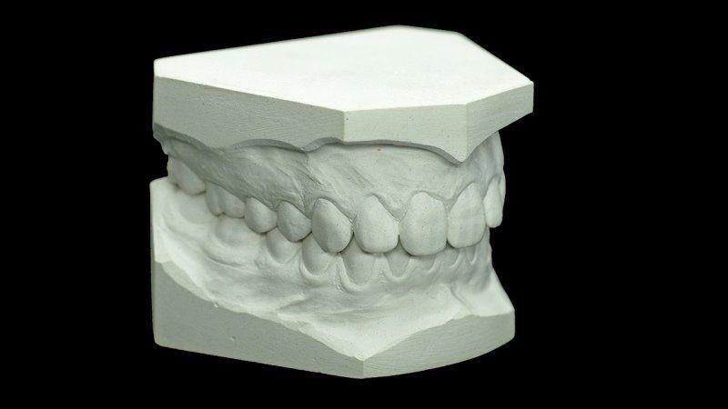 Какие слепочные массы применяются в стоматологии