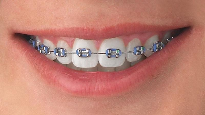 Что собой представляют брекеты American orthodontics  Mini Master