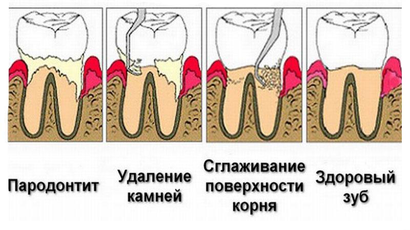 Что такое гингивотомия зуба