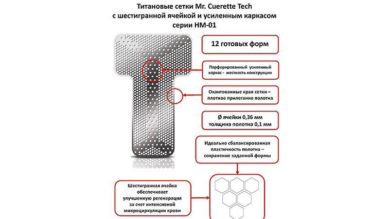 Для чего применяются титановые сетки в стоматологии