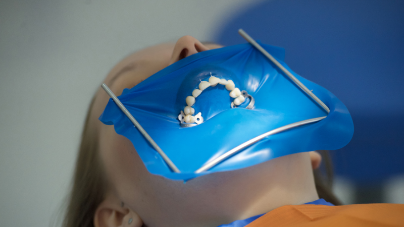 Что такое коффердам в стоматологии