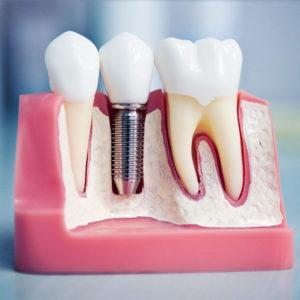 Остеопластика в стоматологии назначение и суть процедуры