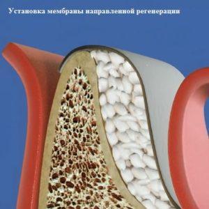Что такое костная пластика