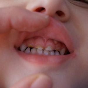 Как лечить экзостоз после удаления зуба