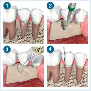 Как применяется стоматологический цемент