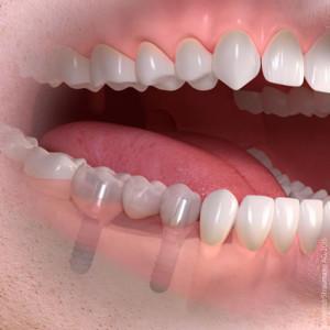 Как применяются микроимпланты в сфере ортодонтии