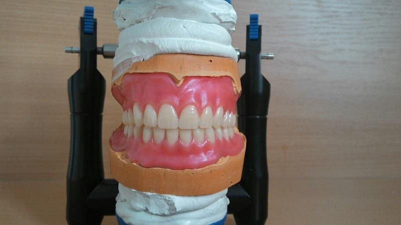 Что такое перебазировка съемного протеза