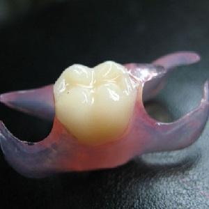 Что такое зубной протез-бабочка