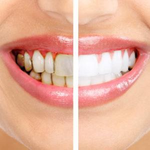 Как происходит отбеливание зубов лазером
